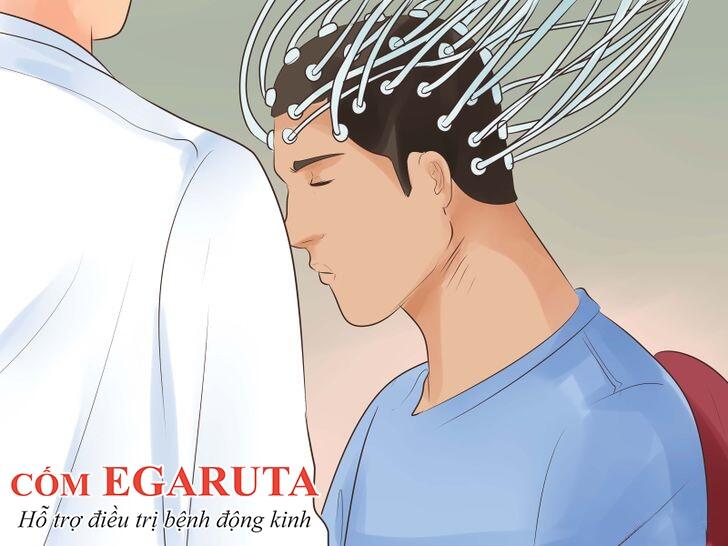 Điện não đồ – Phương pháp quan trọng nhất trong chẩn đoán động kinh
